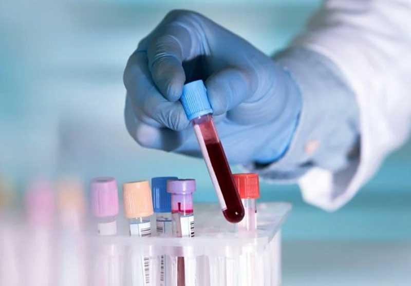 Satu Juta Orang Bakal Diuji Rapid Test Virus Corona