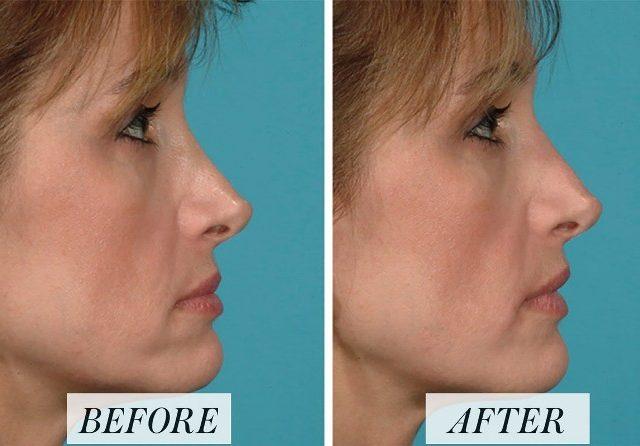 Memancungkan Hidung dengan Teknik Rhinoplasty