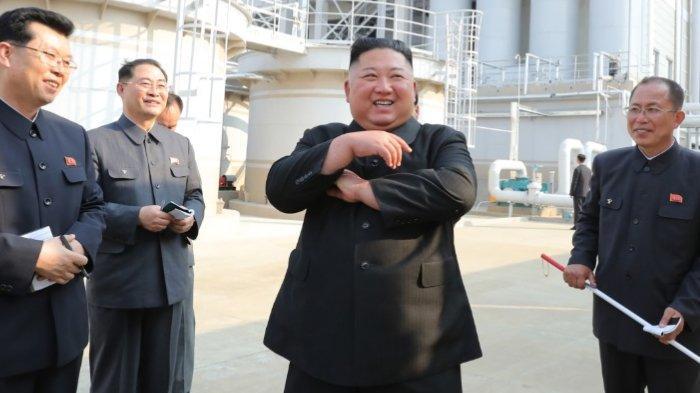 Siapa Bilang Kim Jong Un Jalani Operasi Kardiovaskular? Ini Faktanya