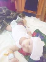 Bayi 6 Bulan Dugaan Korban Malapraktik