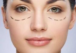 Tips Koreksi Bagian Bawah Mata dan Pipi Cukup dengan Make-Up