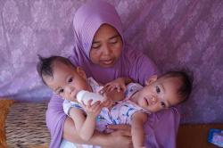 Bayi-Bayi Kembar Siam yang Sudah dan Menunggu Operasi
