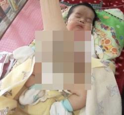 Bayi Mungil Pengidap Omfalokel Terpaksa Keluar dari RSUD Arifin Achmad