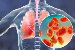 Cina Sebut Pneumonia Aneh Lebih Mematikan Dari Corona