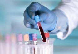 PCR dari Swiss Mampu Uji hingga 10 Ribu Spesimen