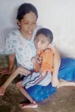 Slamat Kurniawan, Anak Pengidap Radang Otak dan Epilepsi di Kuansing